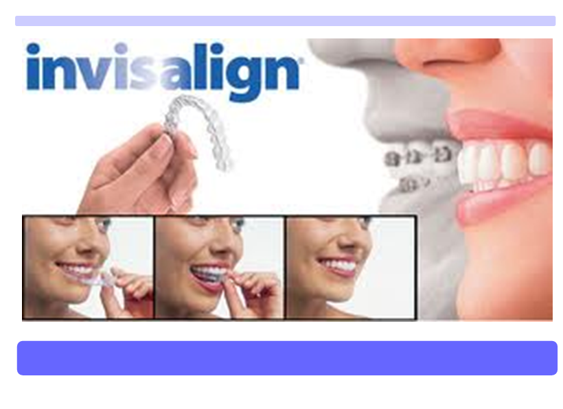 Often Invisalign Teen 82